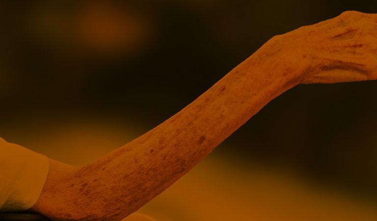 A foto mostra o braço estendido de um homem idoso. Na foto, aparece um pedaço de uma cadeira de rodas